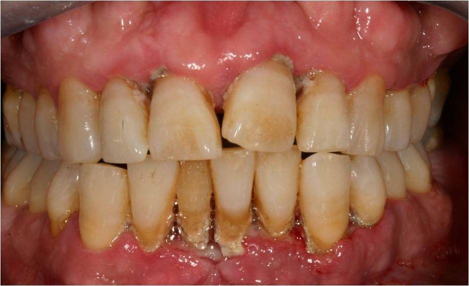 Камень зубной фото